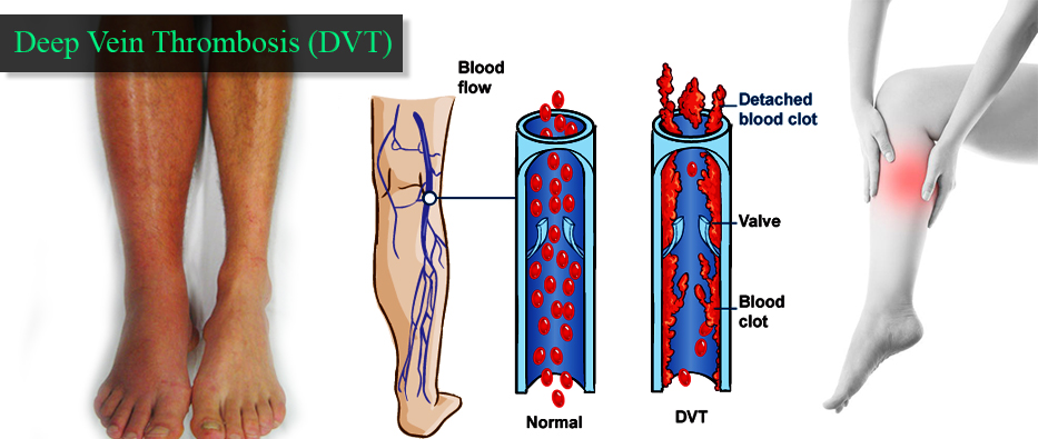 what causes blood clots in the legs