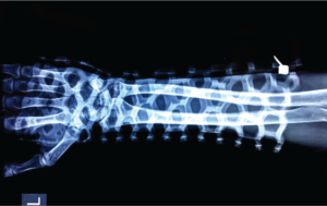 Radiolucency of FlexiOH™ short arm cast of OrthoHeal Private Limited