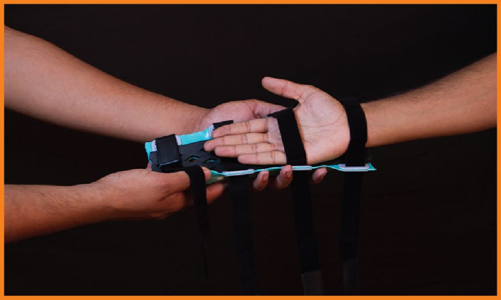 FlexiOH Splint or slab application process